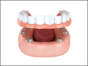 All on 4 denture implants offered by Richardson dentist Dr. Howard Kessner.